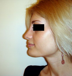 Ринопластика – фото После  операции - пласический хирург Кулиев Т.А.