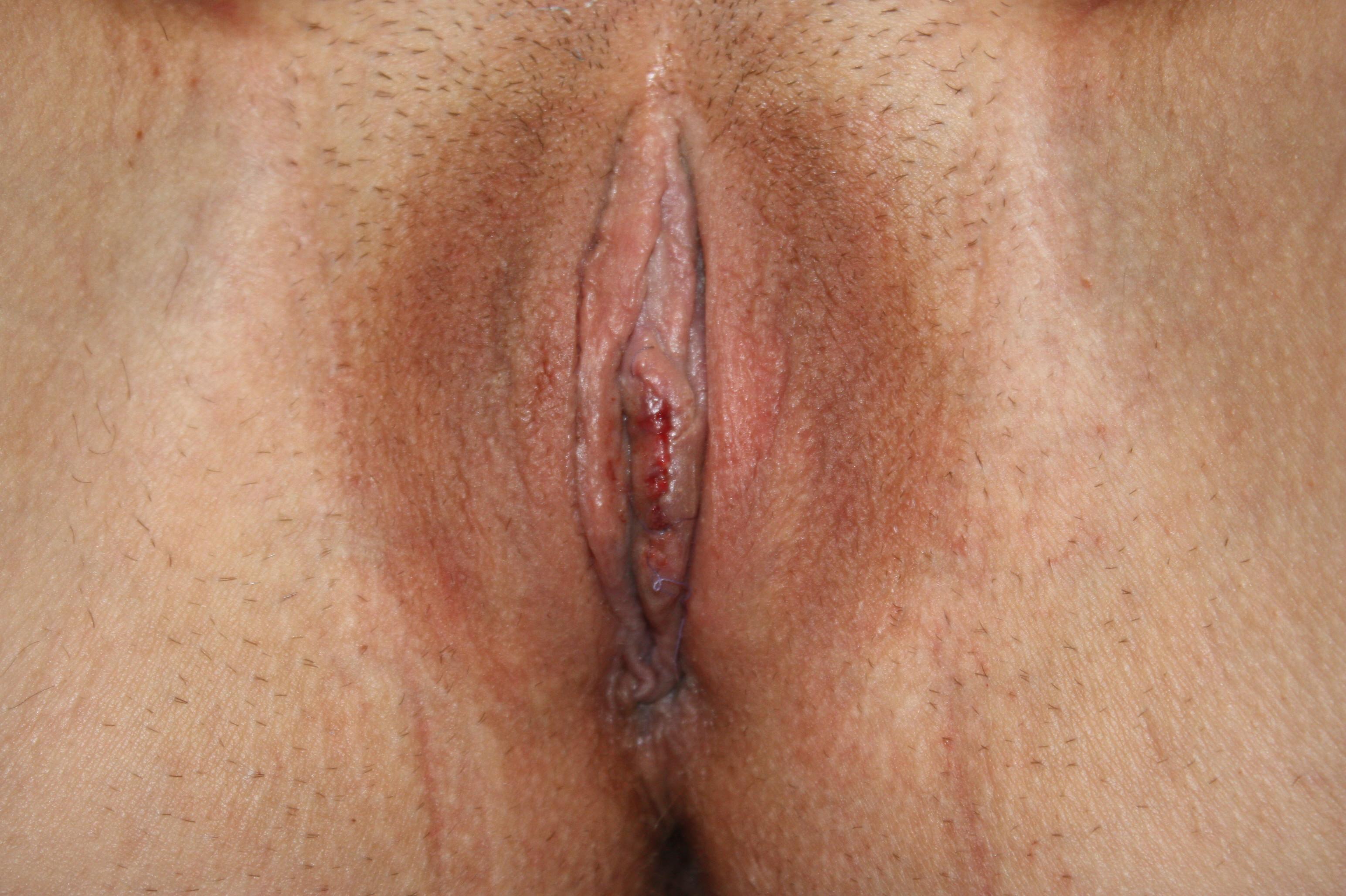Разные формы половых губ фото 16 фотография