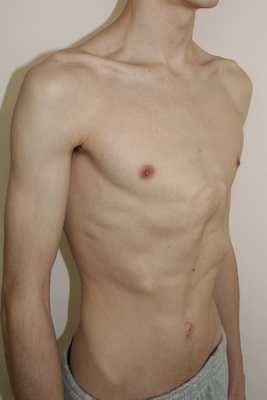 доктор по увеличению груди г воронеж