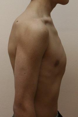 Как лечить килевидную деформацию грудной клетки