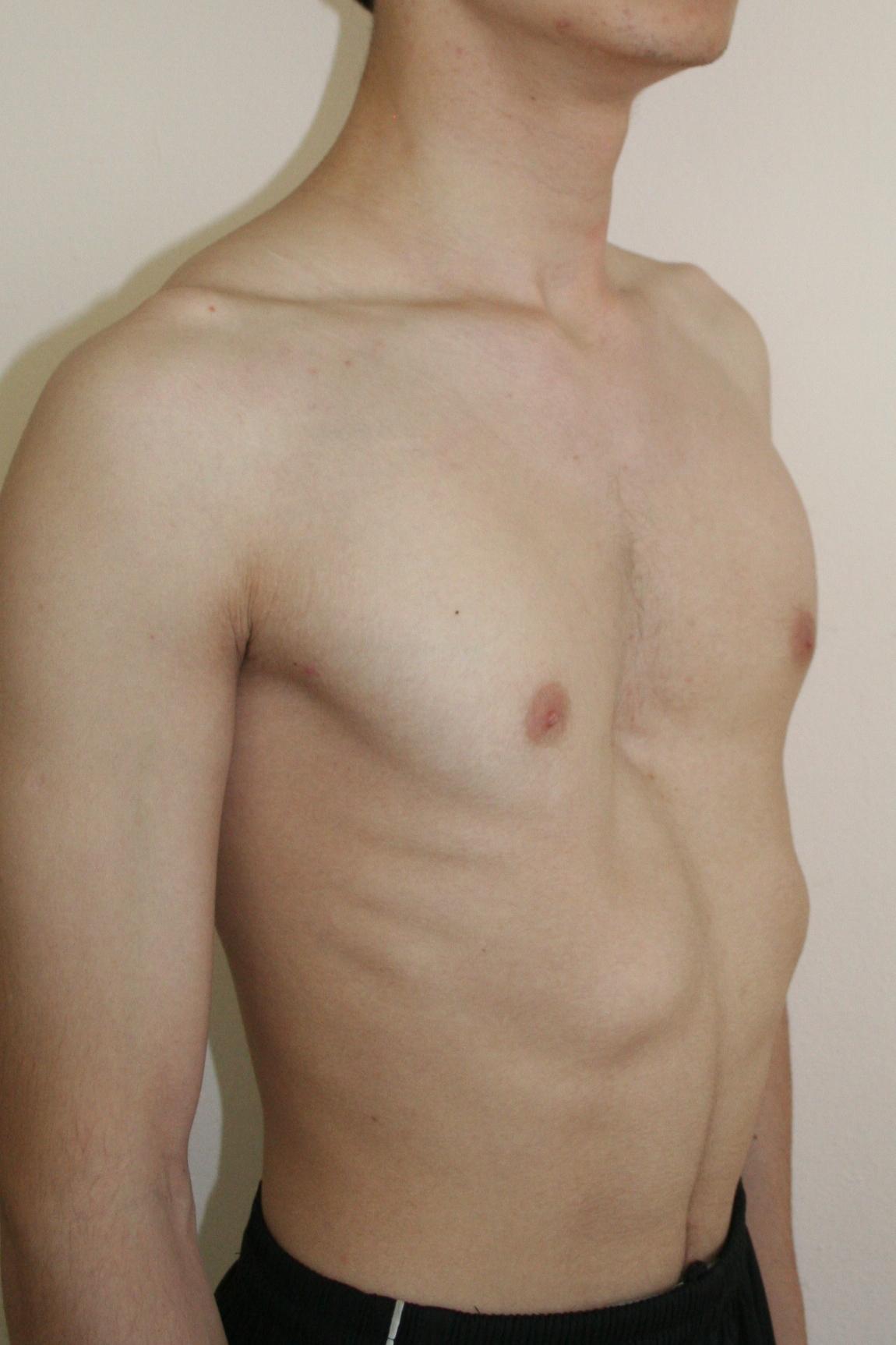 Что будет после родов с маленькой грудью