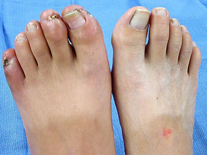 Ноги немеют от диабета народные средства