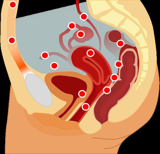 orgazm-pri-adenomioze